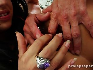 Anal Prolapse Party