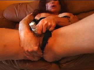 Multipl breast masses