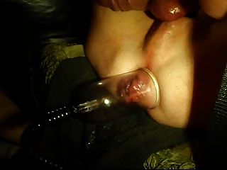 Links, Anal Rosebud Pumping, Fisting Elbow Deep,