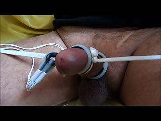 Electrical Stimulation Of The Penis Ususa