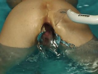Elmer Wife Anal Speculum In Buth