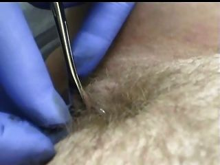 Body Piercing Collection Of Pierced Pussies And Nipples 1