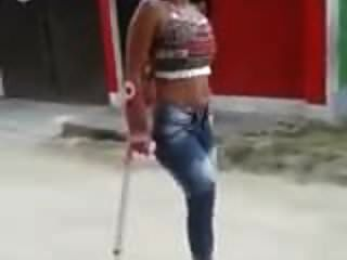 Amputee Crutching1